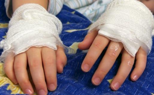 Hondureño le quema las manos a su hija por negarse a grabar intimidades